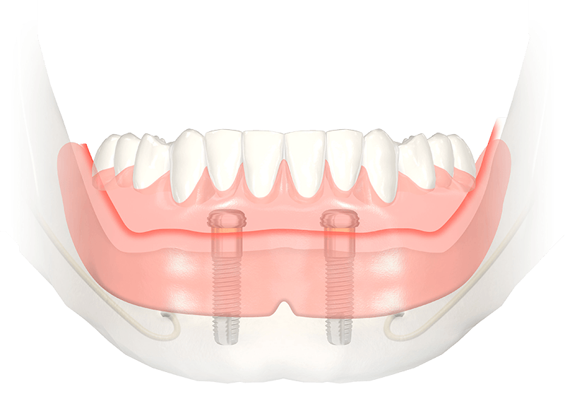 Lower Implant Retained Overdenture